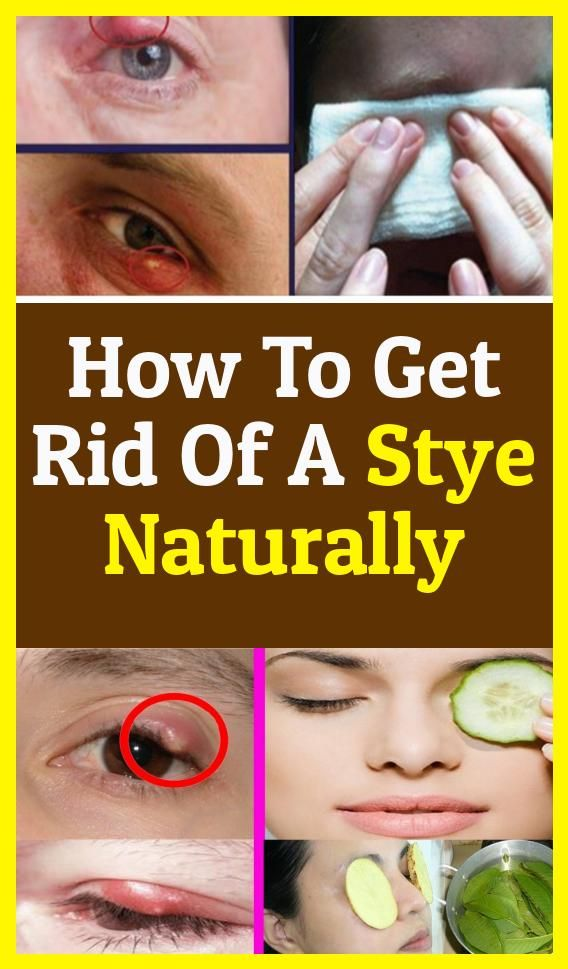 Of Course, How Do I Get Rid Of A Stye! #existingstye #eyes ...