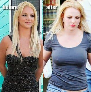8566e76ebb Britney Spears Breast Implants - http   www.celeb-surgery.com