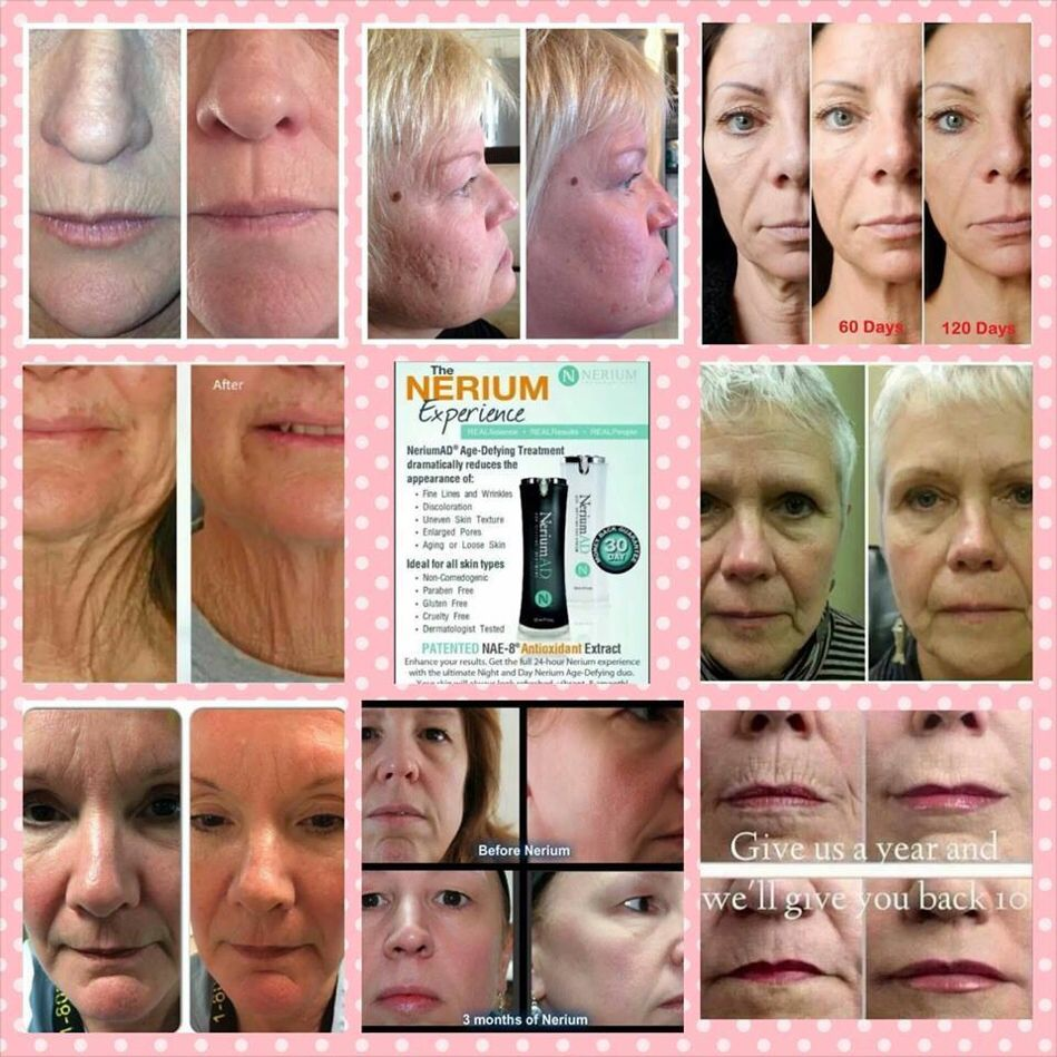 Results are AMAZING!! I know your curious!! www.csnow13.arealbreakthorough.com