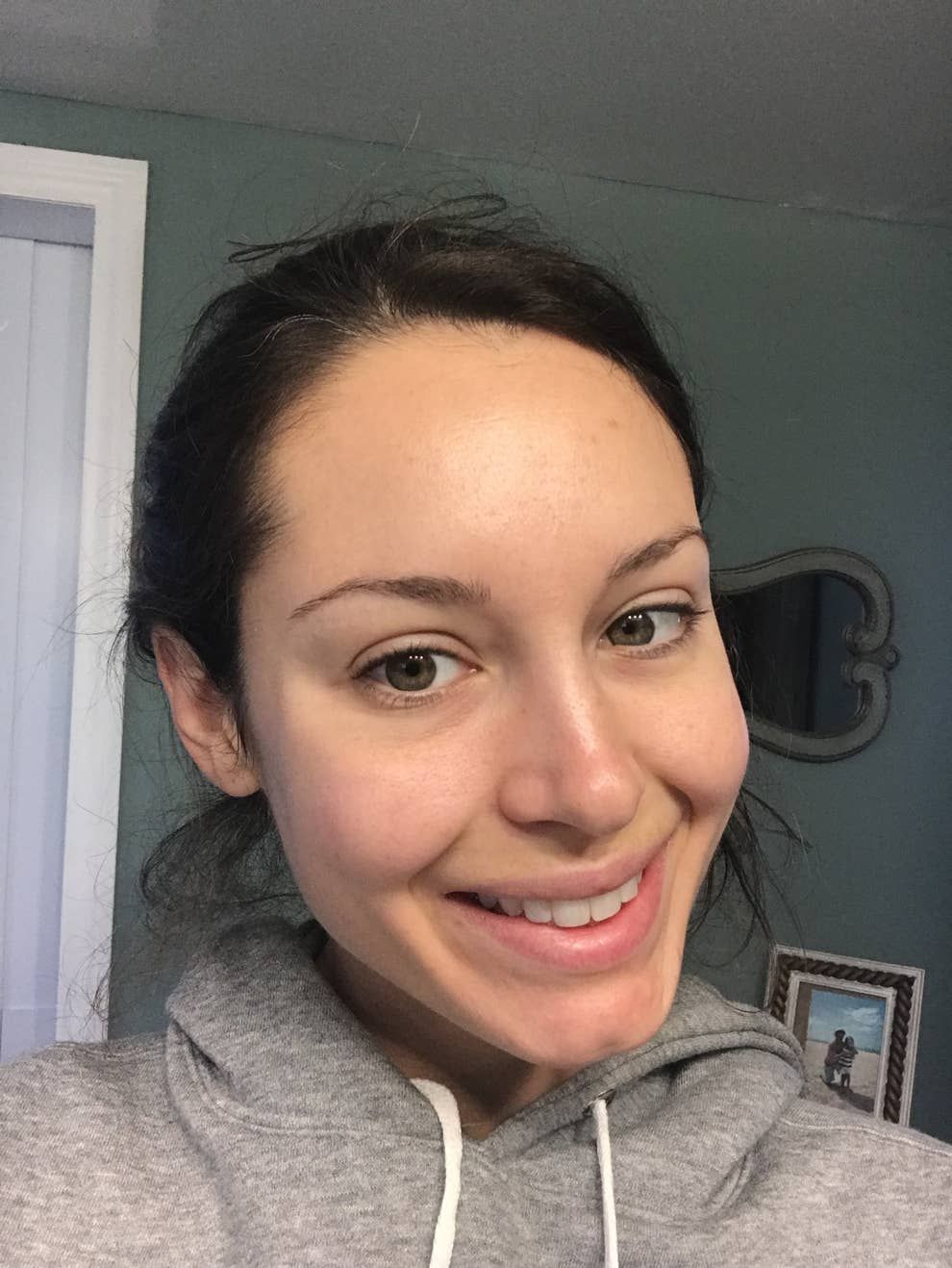 I Tried Jennifer Lopez S Skincare Routine And The Results Were Pretty Dramatic Cheek Acne Skin Care Skin Care Routine