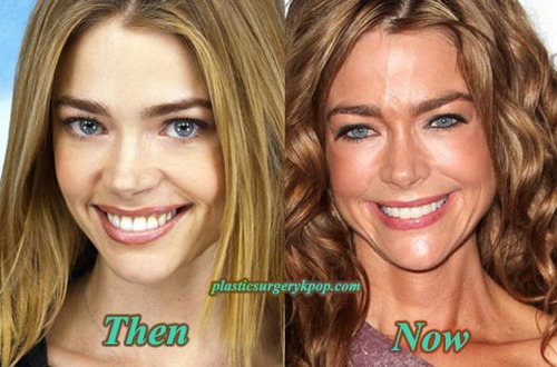 Prognathism celebrity plastic surgery