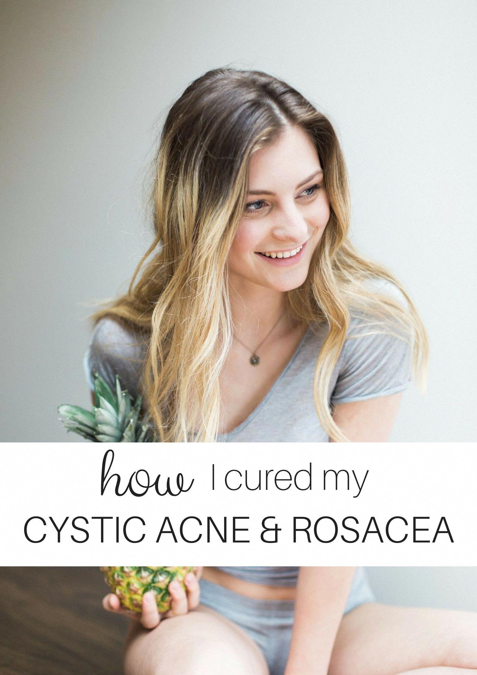 How I Cured my Cystic Acne u Rosacea rosceatreatment  Rosacea