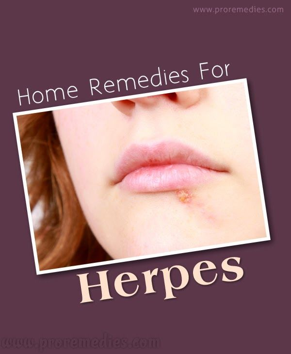 Herpes 2 randevú
