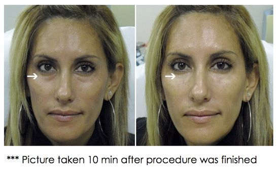 Using restylane/juvederm to fill the hollows under the eye