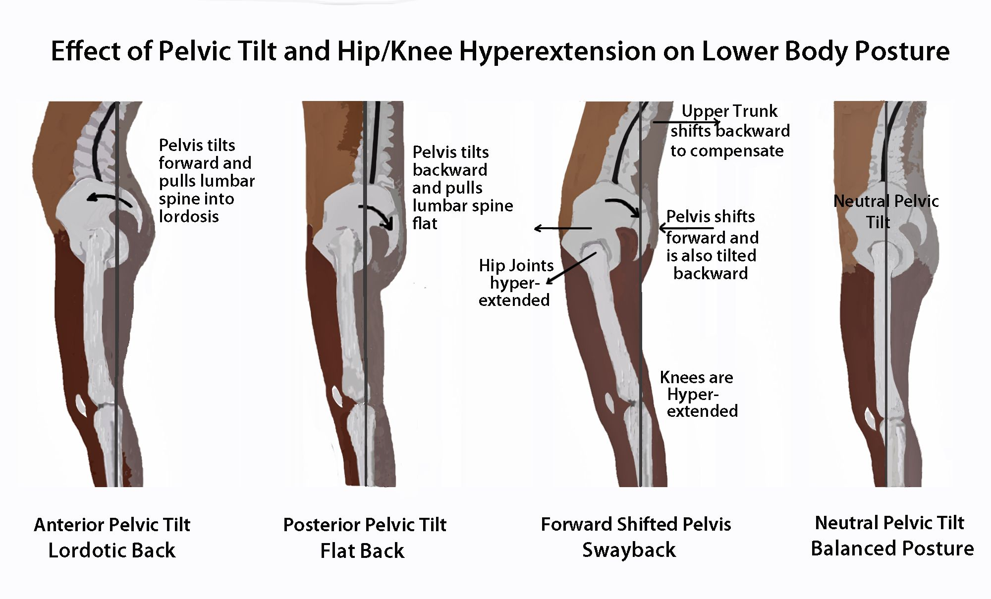 hight resolution of effect of pelvic tilt and hip knee hyperextension on lower body posture
