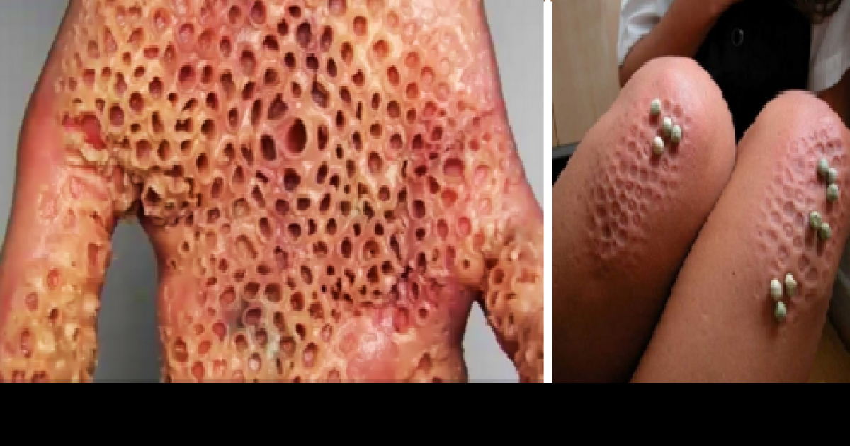Trypophobia Is A Real Terrifying Thing And You Definitely Have