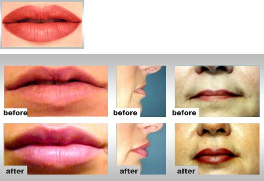Pin by Jamie Hoobler on Lips Augmentation | Lip augmentation