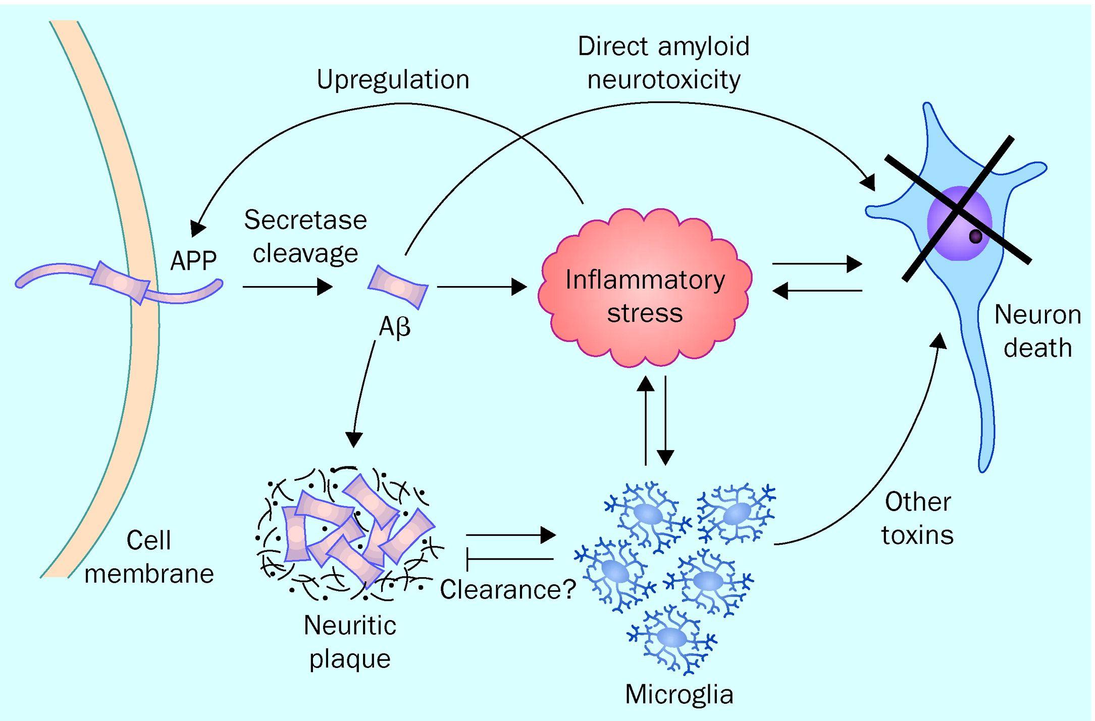Image result for alzheimer diseases pathogenesis ppt