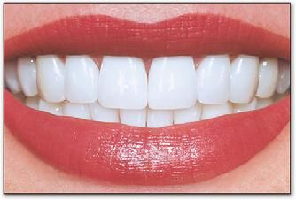 hollywood smile - Google Search | I want this | Pinterest ...