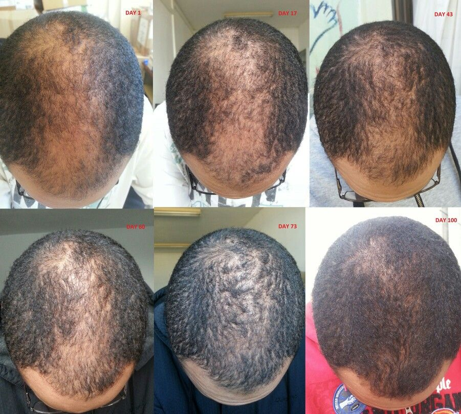 Hair Loss Before After 100 Days Using Minoxidil