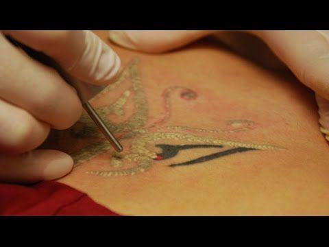 Como Sacar Un Tatuaje Como Se Puede Quitar Un Tatuaje Cremas Para