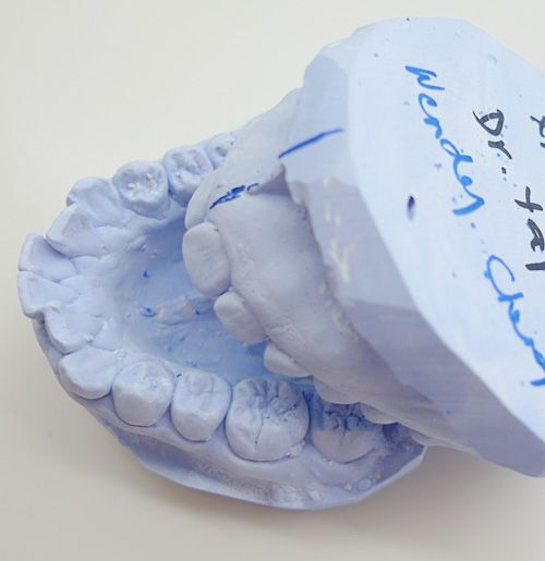 Dental Implants, Dental and Denture implants cost, dentistry Winnipeg are artificial roots that are surgically fitted into the upper or lower jawbone in order to compensate for tooth loss. Crowns, bridges or dentures are then placed on top of the implant. www.mydentaldesigns.ca/dental_implants.php