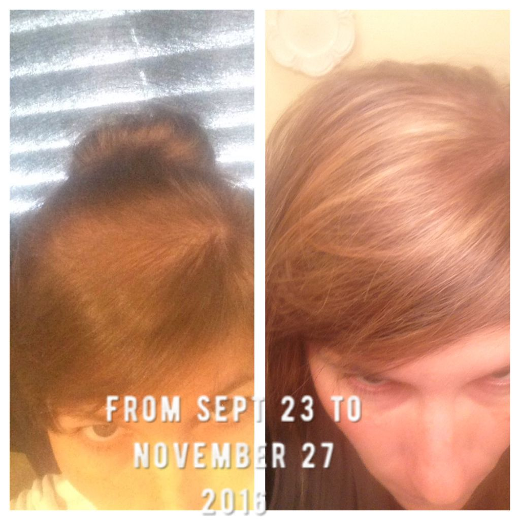 Hair restoration with diatomaceous earth Beef gelatin and