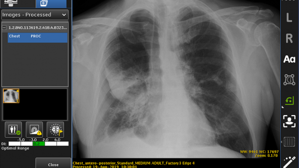 FDA approves GE's AIbased collapsed lung detection system
