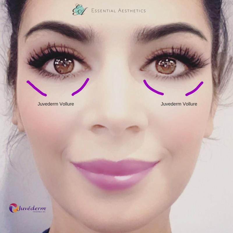 Juvederm Vollure is injected on the cheeks and under eyes to