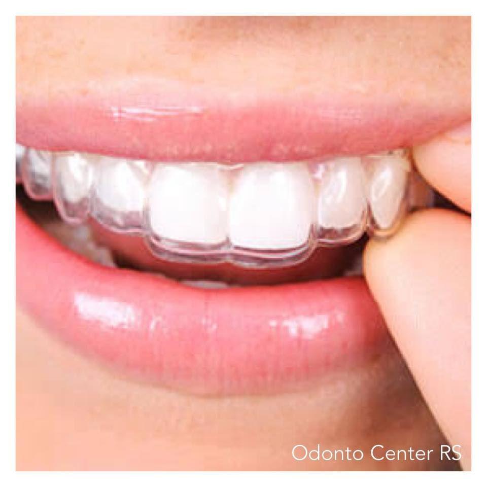 Clareamento Dental Dentista Clinica Odonto Center Rs Agende Sua