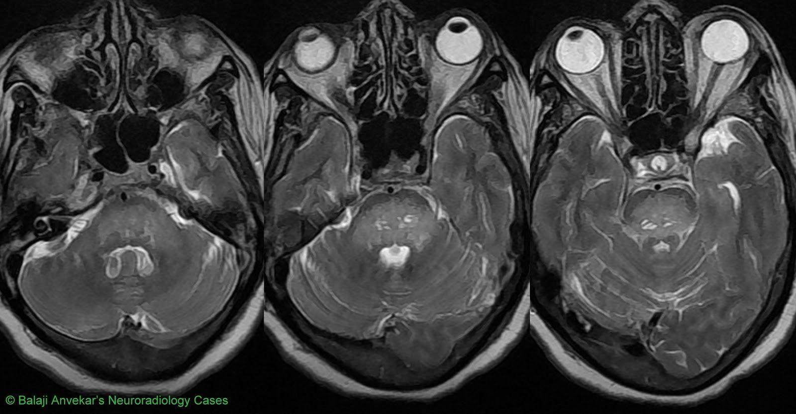 Abnormalbrainmri mri scan mri scan