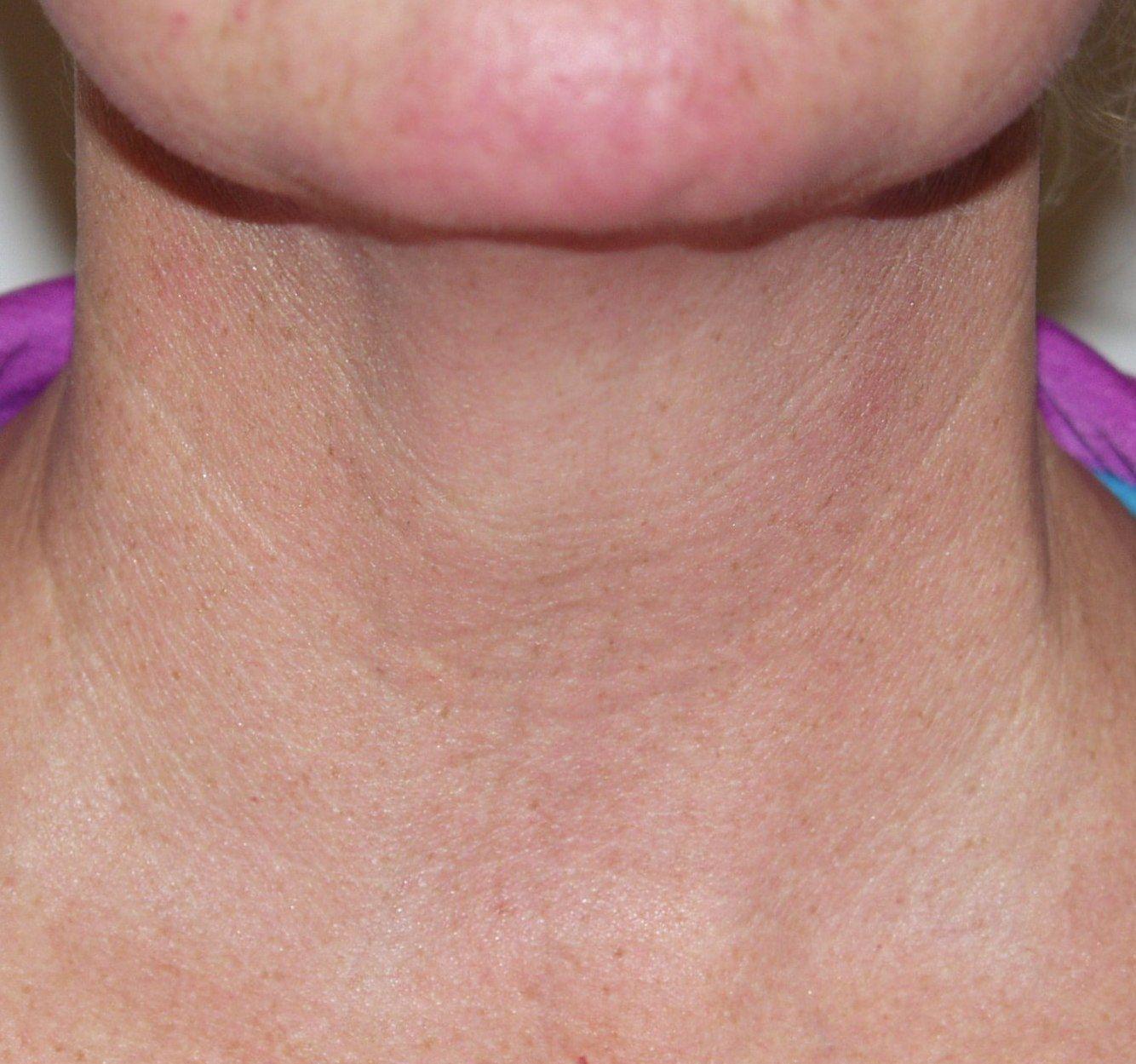 BEFORE  Micro-Botox: Skin texture is rough & irregular