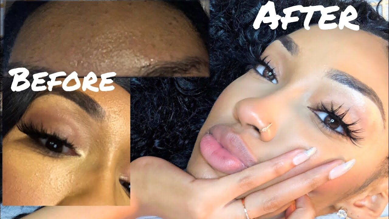 How To Get Rid Of Bumpy Textured Skin On Face