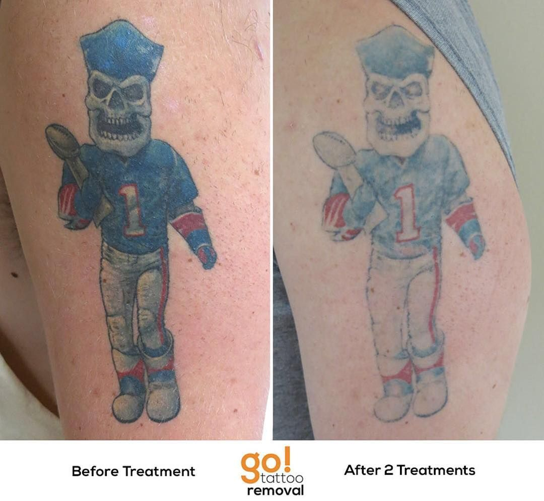 Our PicoSure made a HUGE dent in this client's tattoo
