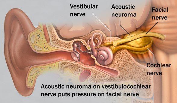 In facial nerves Cancer
