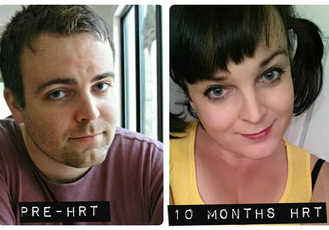 Mtf, 10 Months Hrt Before And After  Ts  Mtf -3601
