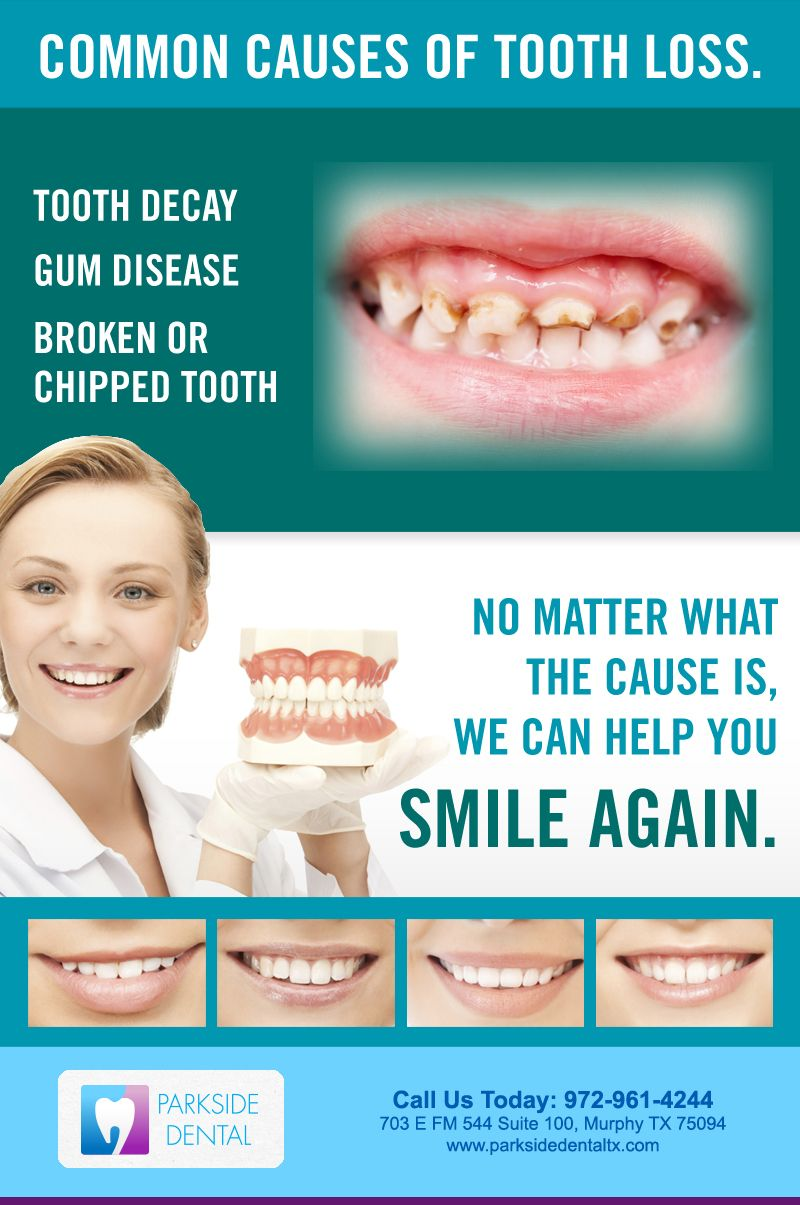 Common Causes of ToothLoss NO MATTER WHAT THE CAUSE IS