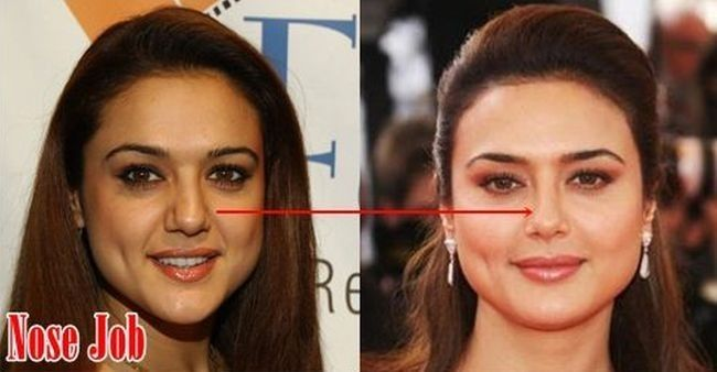 Preity Zinta Before And After Plastic Surgery  Plastic -4937