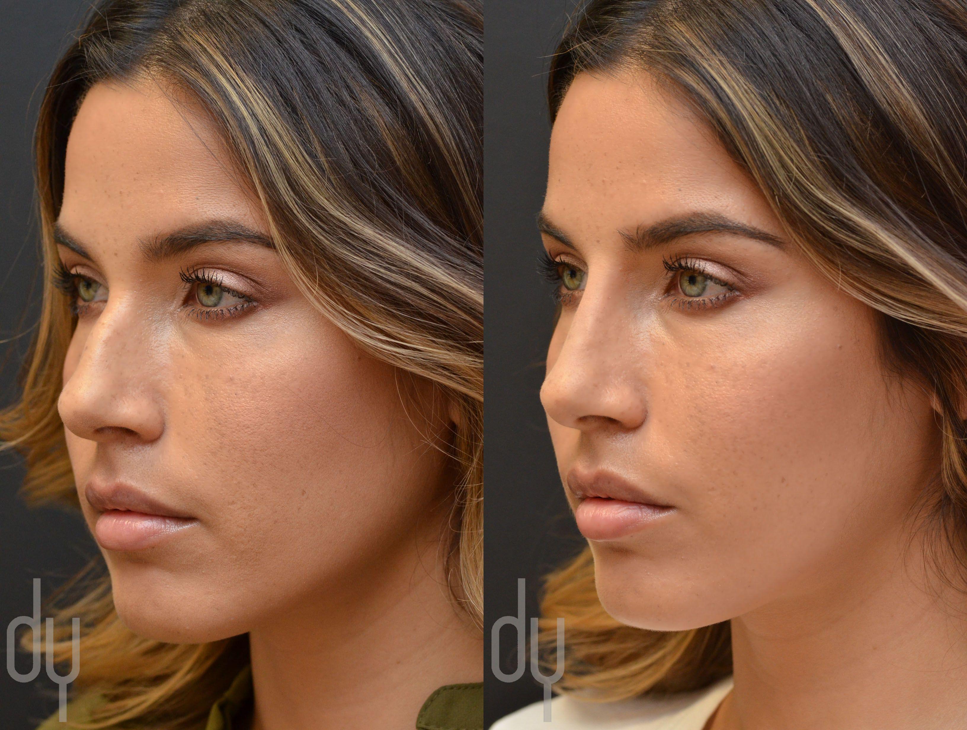 17 best ideas about cirurgia plastica no nariz 17 best ideas about cirurgia plastica no nariz nariz empregos rinoplastia and cirurgia rinoplastia