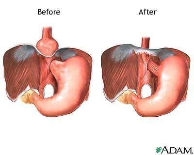 Hiatal hernia vs. Normal anatomy: \