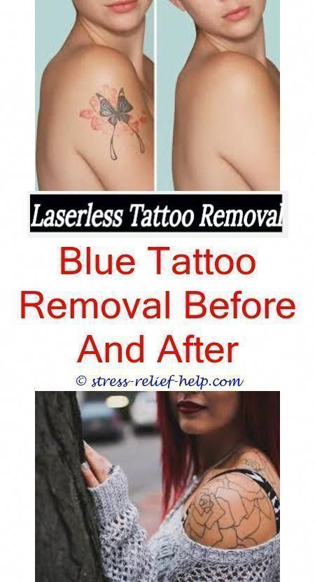 Aloe Vera Yogurt Tattoo Removal: Tattoo Cover Up Did The Impractical Jokers Get Their