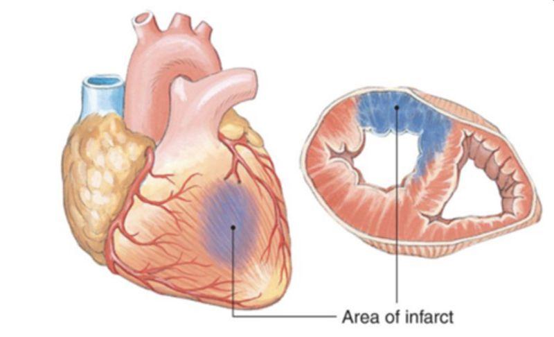 Varice la nivelul picioarelor și la inimă