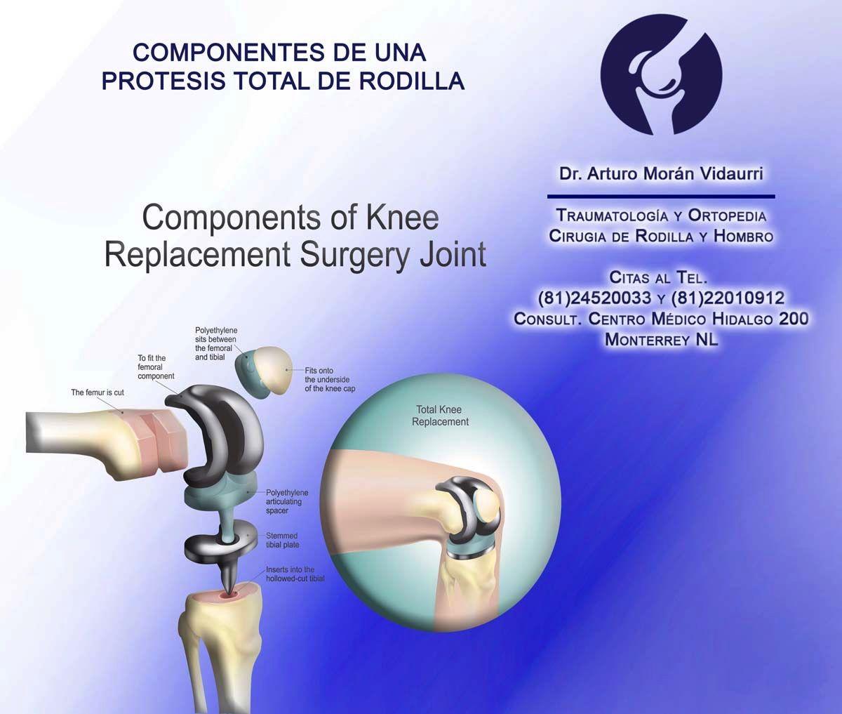 Protesis Total De Rodilla Tratamiento Para Desgaste De Rodilla Avanzado Protesisderodilla Dolorderodilla Cirugía De Rodilla Rodillas Dolor En La Rodilla