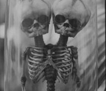 skeleton, skull, twins
