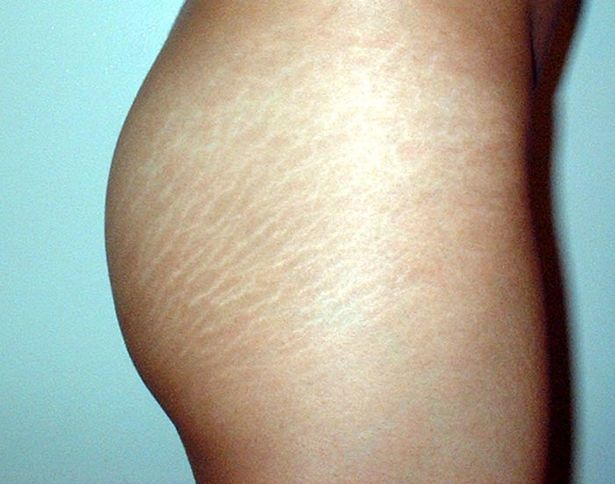 Image result for butt stretch marks