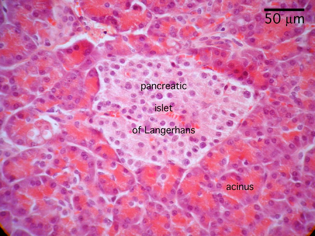 pancreas slide - photo #13