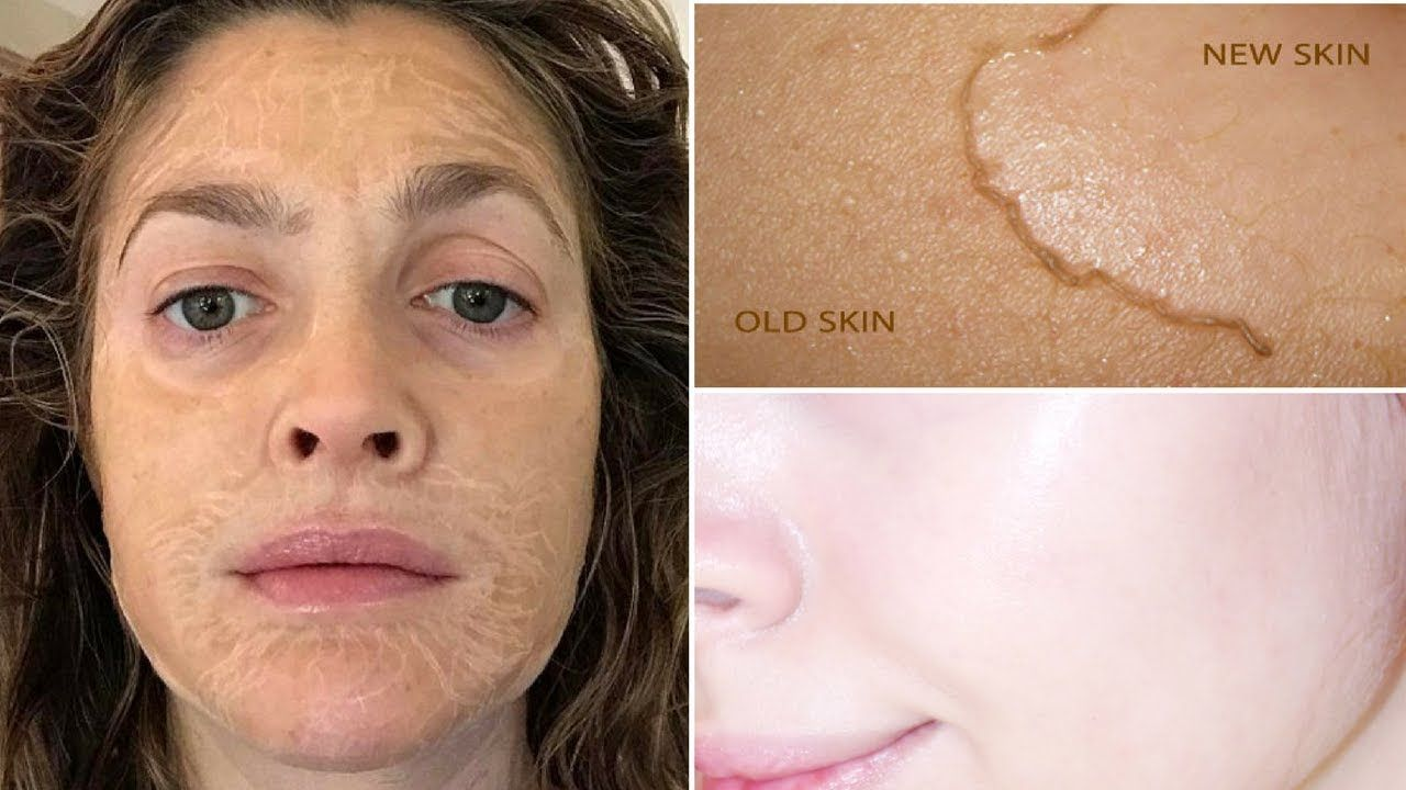 How To Get Dead Skin Off Your Face At Home