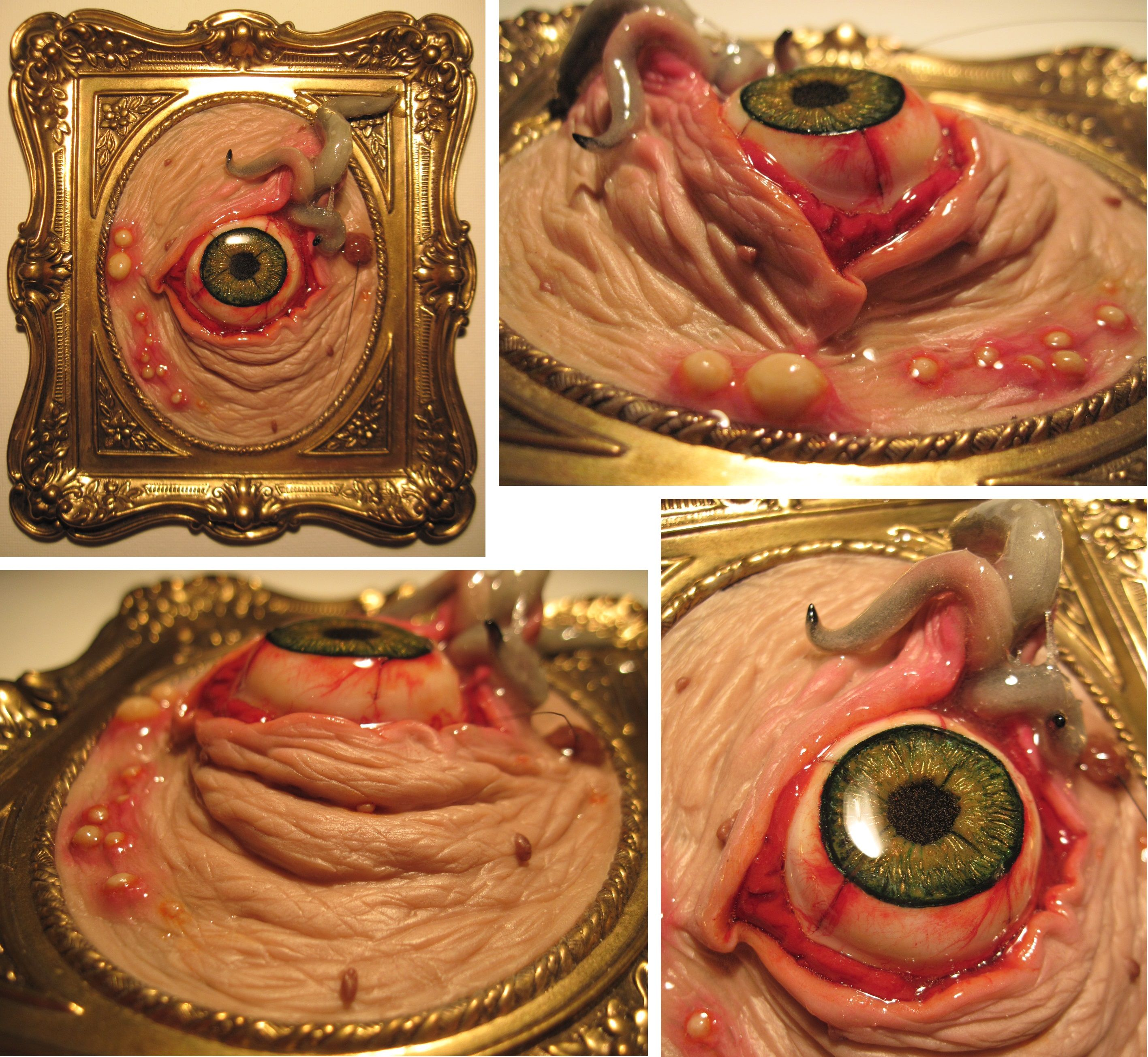 Infected Skin Tag Sculpture By Jody Elizabeth And
