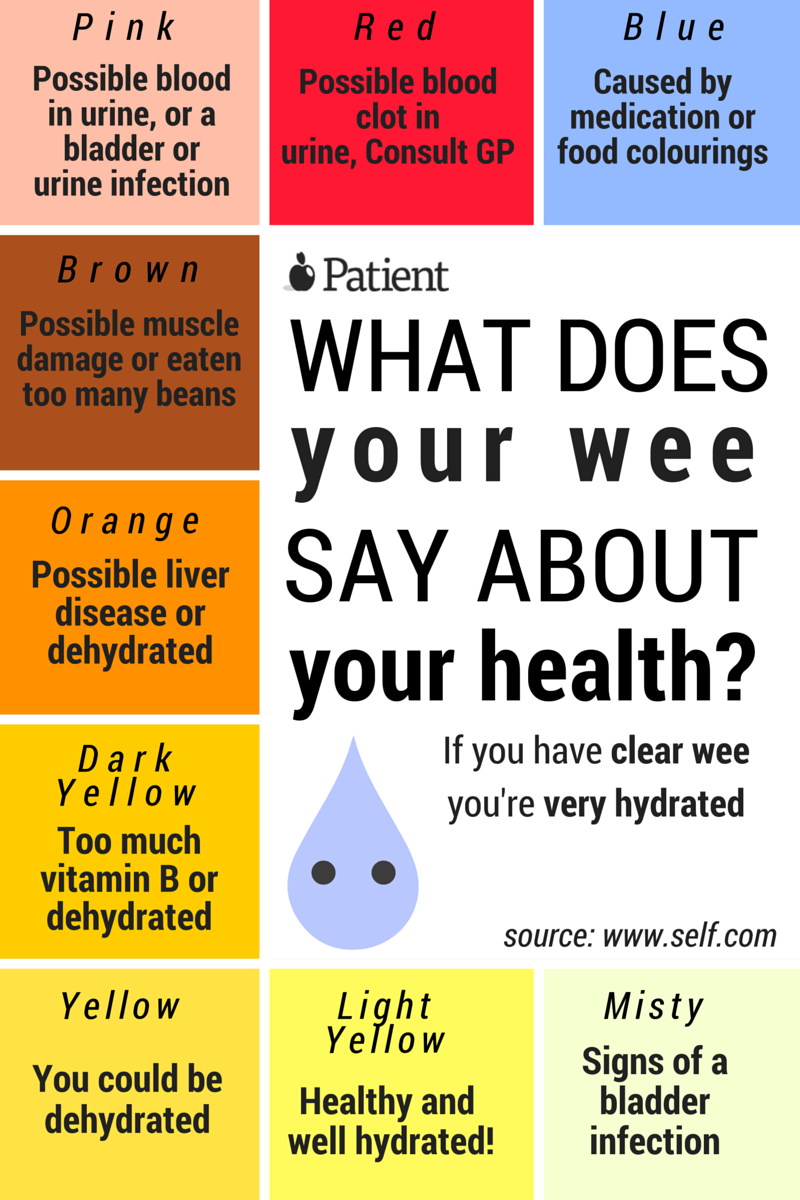 How Healthy Is Your Urine? Check this chart and see if you ...