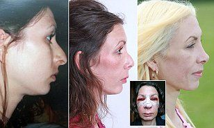 Vanessa Brooks, 40, from Norwich, had a nose job six years ago but it left her with a 'disgusting beak'. Two further operations failed to fix it, and she became depressed, losing her job and her husband.