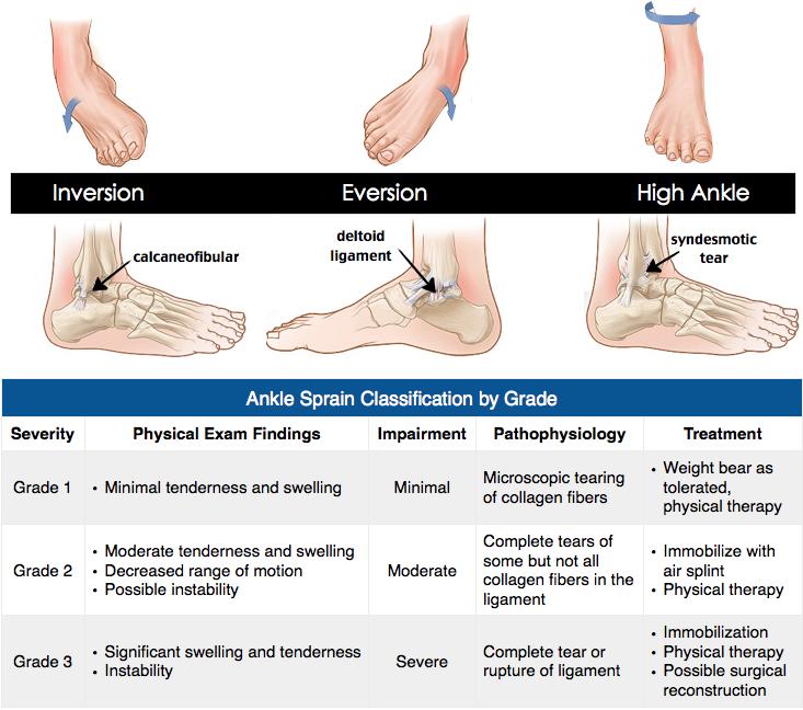 Ankle Sprain Grading ankle ll orth | Sprain treatment ...