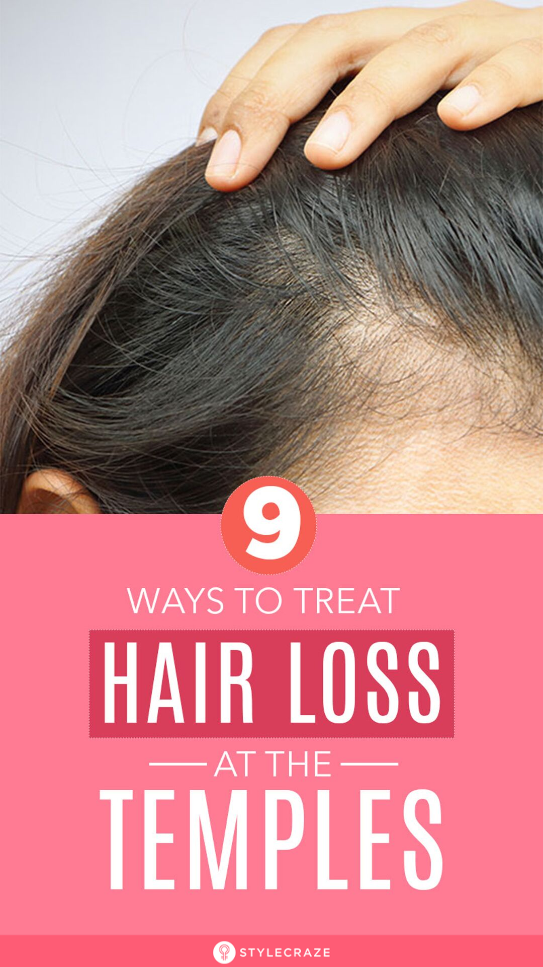 8 Simple Ways To Treat Hair Loss At The Temples Postpartum Hair Loss Temple Hair Loss Hair Loss