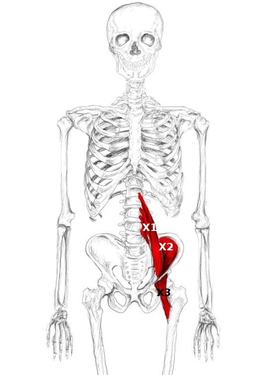 Relieve your iliopsoas muscle pain and its trigger points, which can ...