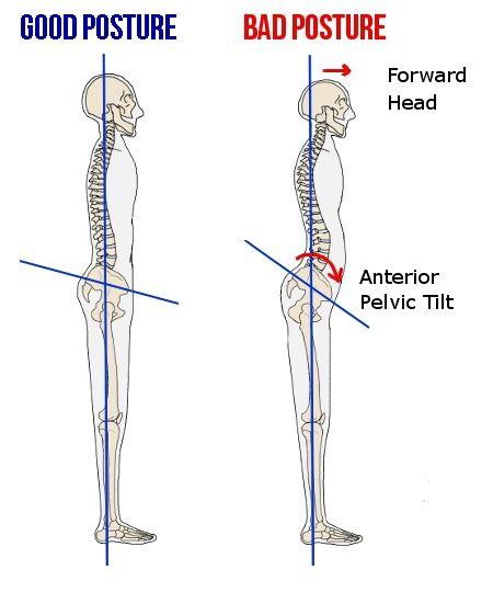 Diagram of good vs bad posture