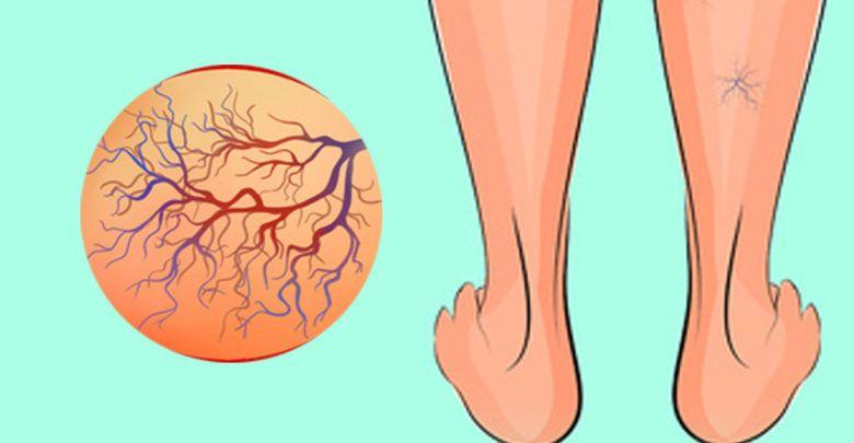 علاج الدوالي وأسبابها ونصائح للوقاية من الاصابة بها
