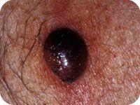 Nodular melanoma | Sun protection & sun safety | Cancer, Sun