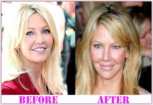 Nicole Aniston After Surgery | Plastic Surgery Celebrities ...