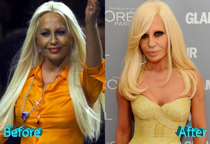 Donatella Versace Before And After Multiple Surgeries In