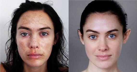 Acid facial peels homemade foto 864
