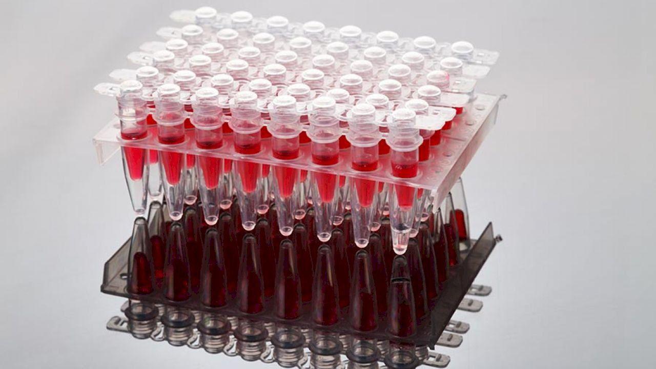 Pin On أمراض الدم